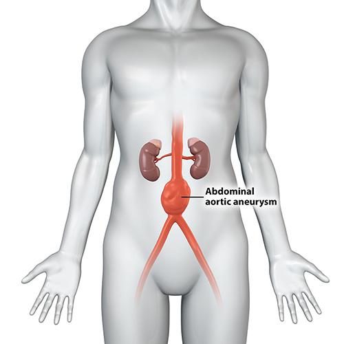 7 Abdominal aortic aneurysm