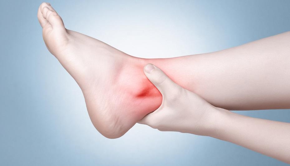 21 Achilles tendinitis