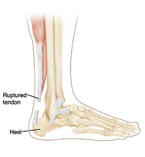 25 Achilles tendon rupture