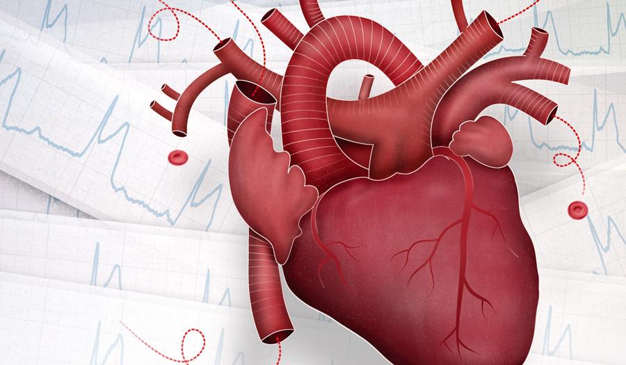 50 Acute coronary syndrome