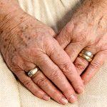 114 Age spots (liver spots)