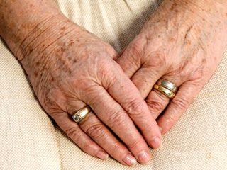 Age spots (liver spots)