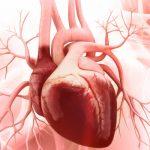 331 Aortic valve stenosis