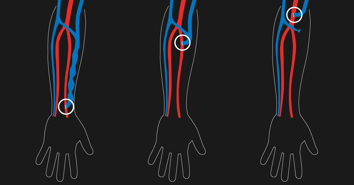 359 Arteriovenous fistula