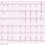 428 Atrial fibrillation
