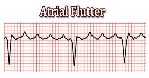 432 Atrial flutter