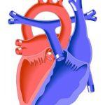 445 Atrioventricular canal defect