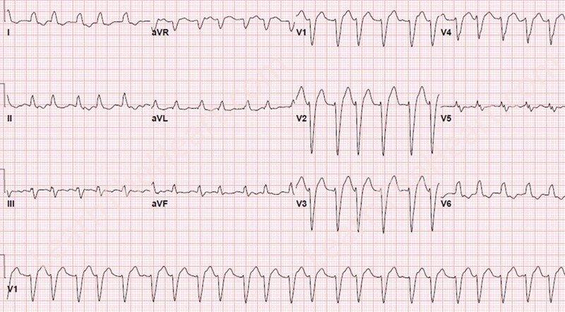448 Atrioventricular nodal reentry tachycardia (AVNRT)