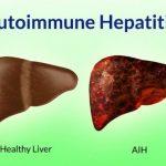 468 Autoimmune hepatitis