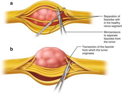 Benign peripheral nerve tumor