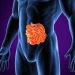 608 Blastocystis hominis infection
