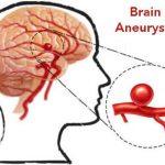 674 Brain aneurysm