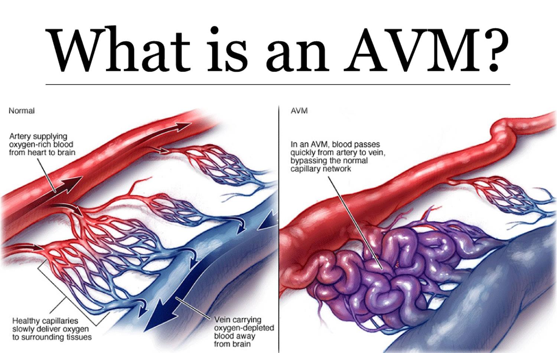 Brain AVM (arteriovenous malformation)