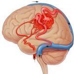 680 Brain AVM (arteriovenous malformation)