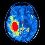 688 Brain tumor