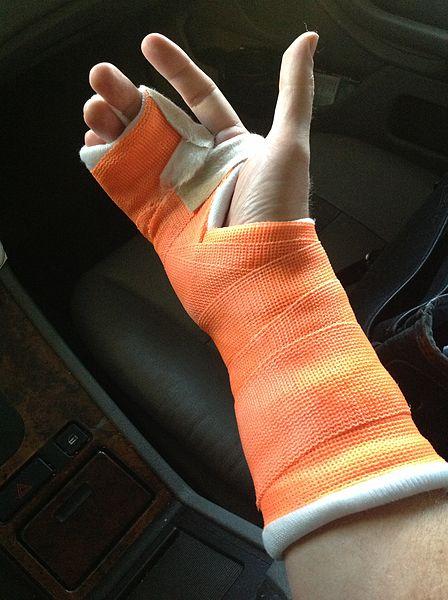 735 Broken wrist/broken hand