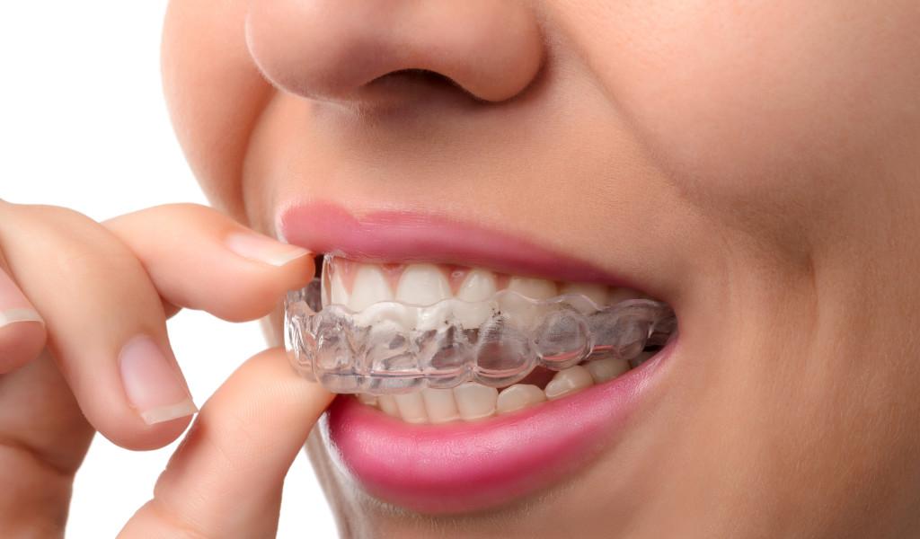 755 Bruxism (teeth grinding)