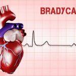 670 Bradycardia
