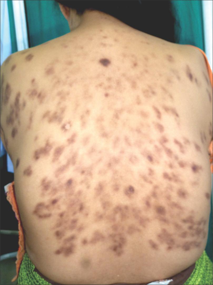 Castleman disease