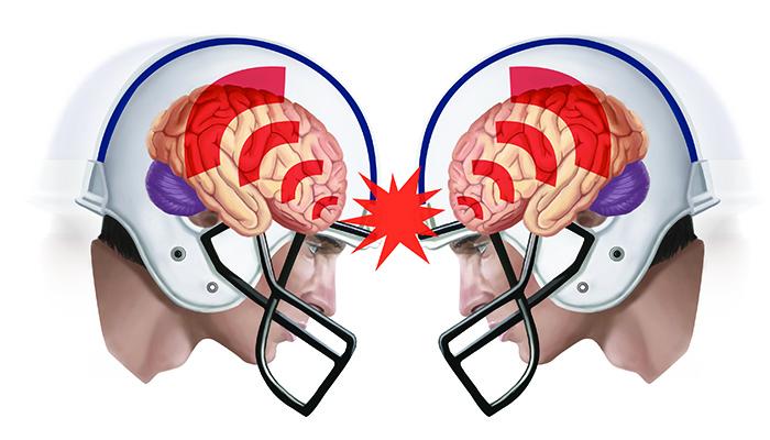 1129 Concussion