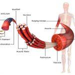 1147 Congenital myopathies