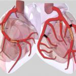 1179 Coronary artery disease
