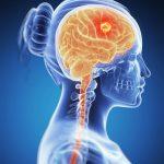 1201 Craniopharyngioma