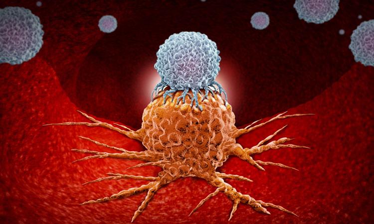 1237 Cutaneous B-cell lymphom