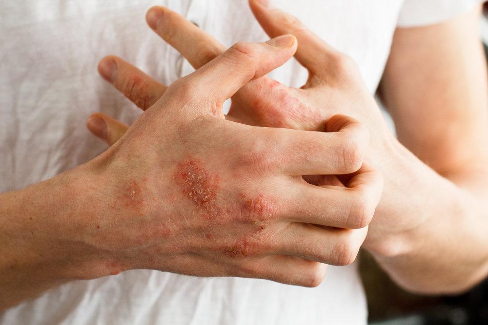 1318 Dermatitis