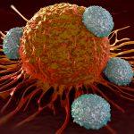 1336 Desmoid tumors