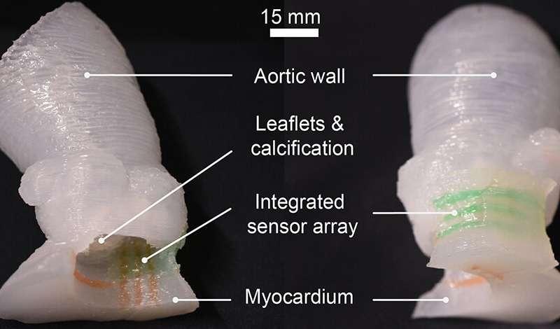 1699 Researchers 3D print lifelike heart valve models