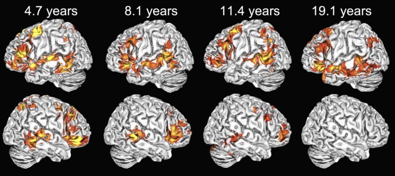1758 Children use both brain hemispheres to understand language, unlike adults